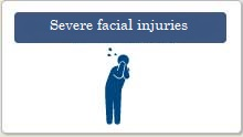 Severe facial injuries