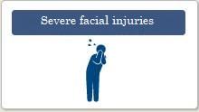 Severe facial injuries